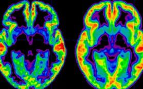 Томограммы мозга способны рассказать, сколько лет обладателю снимка