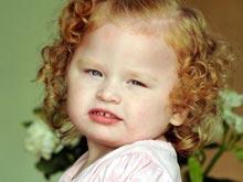 Из-за мозговых отклонений любой громкий звук вызывает у ребенка приступ эпилепсии