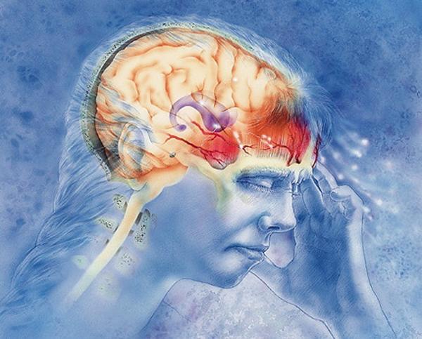Электрическая стимуляция может сокращать количество приступов мигрени