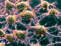 Выявлен белок-маркер болезни Лу Герига и деменции
