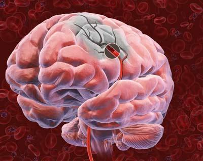 Как активировать механизмы врожденной нейропротекции мозга при инсульте
