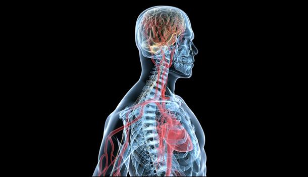 Как избежать рассеянного склероза