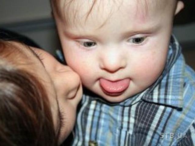 Выявлена молекулярная причина синдрома Дауна