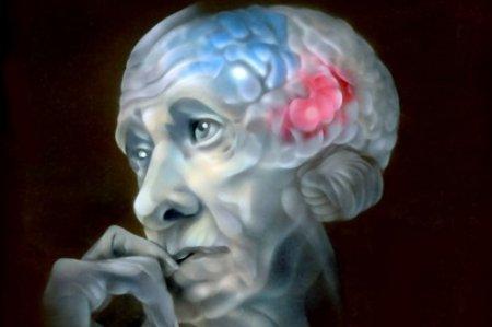 У пациентов с болезнью Альцгеймера в пять раз меньше нейронных связей