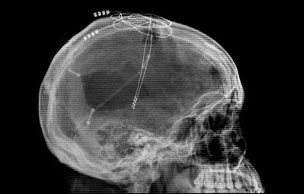 Электростимуляция мозга по вживленным проводам избавляет от клинической депрессии