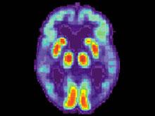 Вероятность развития болезни Альцгеймера возможно предсказать еще в детстве