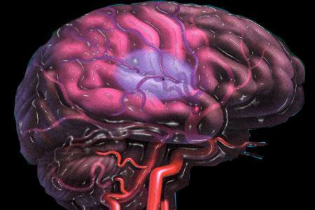 После инсульта может развиться патологическая щедрость