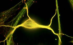 Обнаружены нейроны, управляющие страхом