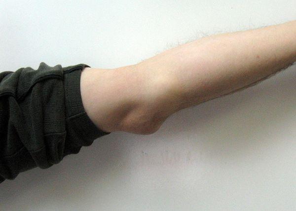Бурсит локтевого сустава и эпикондилит локтя.