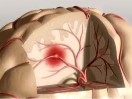 Голову и шею надо беречь во избежание инсульта