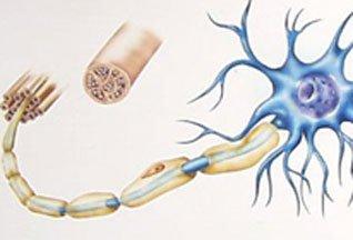 Рассеянный склероз, возможно, имеет бактериологическую природу