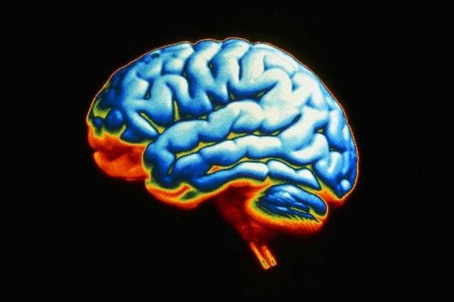 Твёрдые имплантаты раздражают мозг