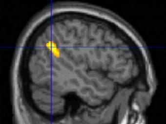 Нейропсихологи нашли объяснение способности помнить сны