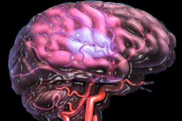Дефицит железа способен привести к инсульту