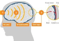 Защитите футболистов от сотрясения мозга!