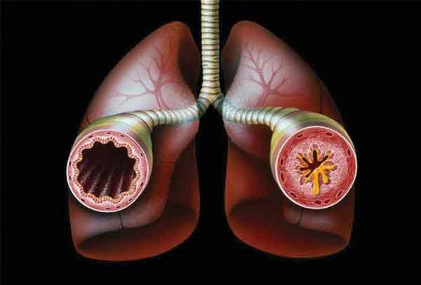 Страх остаться без работы провоцирует развитие астмы