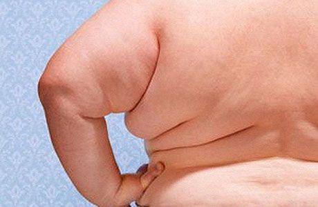 Лишний вес в 30 летнем возрасте повышает риск деменции в старости