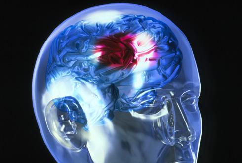 Пульсирующий свет поможет восстановиться после инсульта