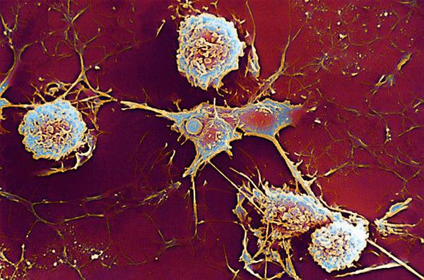Ученые узнали, как лечить склероз и болезнь Альцгеймера