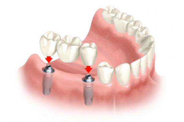 Условия для установки имплантатов и срок их службы