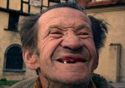 Выпадение зубов в пожилом возрасте – повод для тщательного обследования