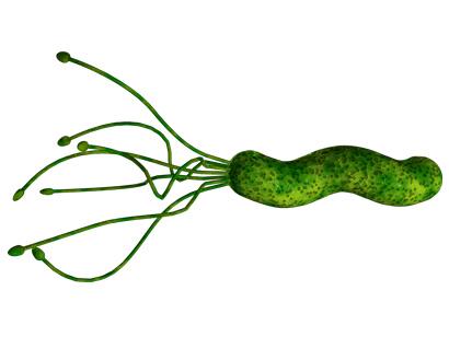Инфицирование Helicobacter pylori связано с меньшим риском развития рассеянного склероза