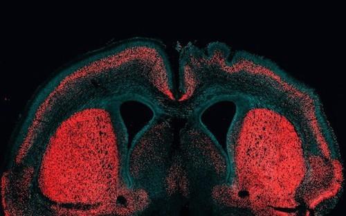 Выделен ген, отвечающий за размер коры мозга и наличие извилин у людей