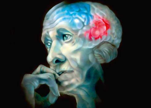 Уже появились 20-летние пациенты с болезнью Альцгеймера