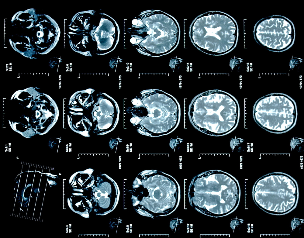 Эксперты назвали пять «убийц» головного мозга
