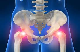 Лечение артрита тазобедренного сустава