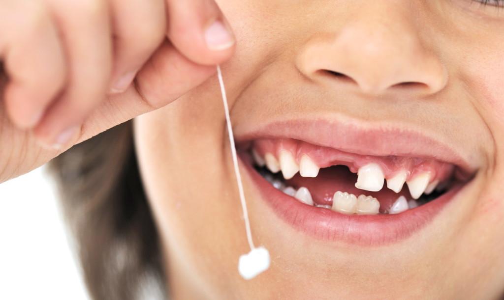 Как удалить зуб без страха