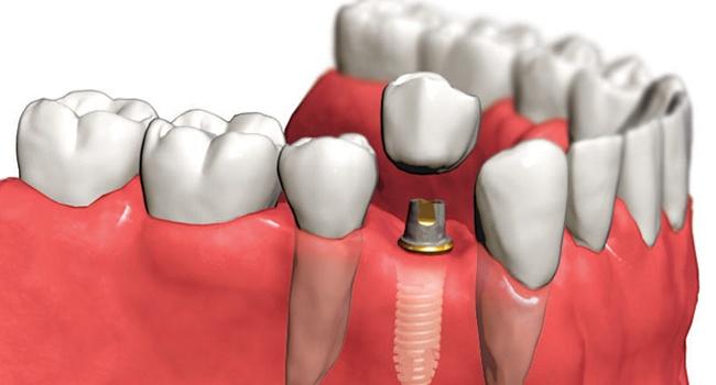 Плюсы зубных имплантатов