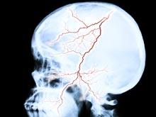 Открытие: после инсульта когнитивные функции продолжают ухудшаться