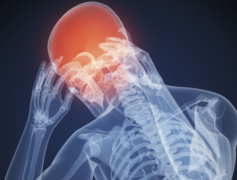 Ученые испытывают лекарство от мигрени
