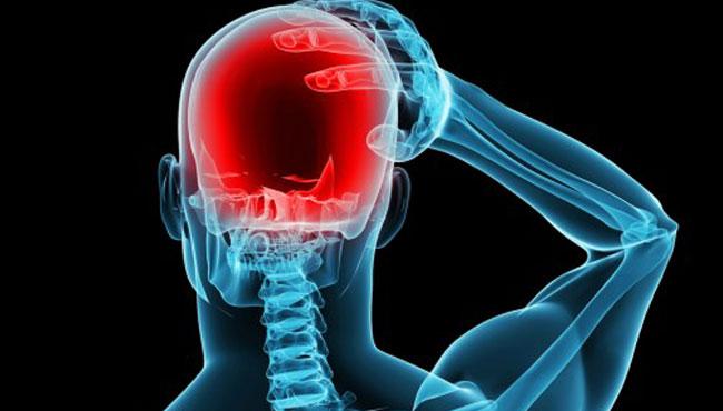 Нейростимуляция для профилактики приступов мигрени