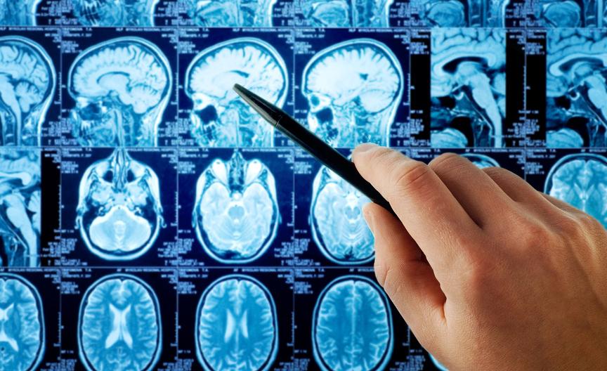 Активность мозга так же уникальна, как и отпечатки пальцев
