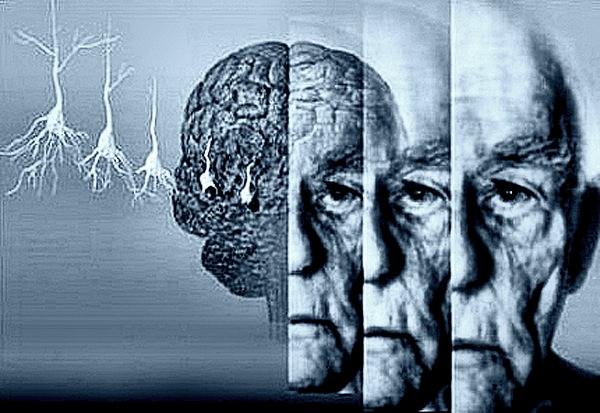Определение болезни Альцгеймера с помощью космического программного обеспечения