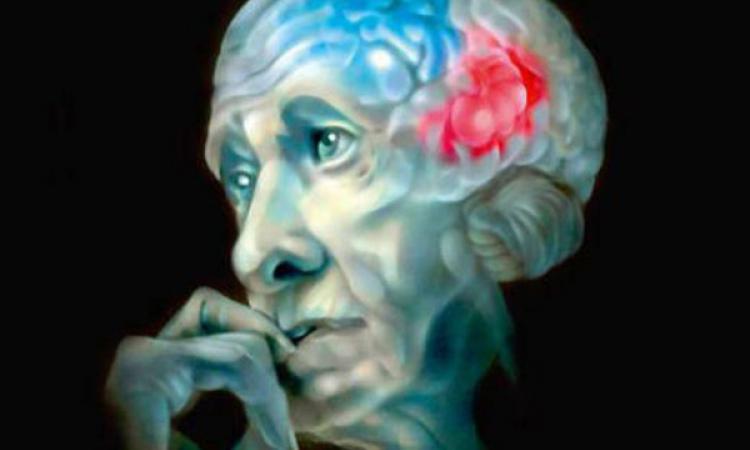 Можно ли предупредить болезнь Альцгеймера