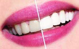 Виды и способы отбеливания зубов