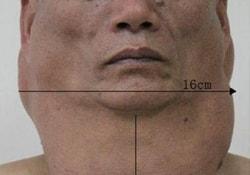 Из-за многолетнего пьянства шея китайца раздулась до чудовищных размеров