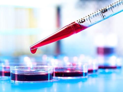 Концентрация мочевой кислоты в крови влияет на риск развития болезни Паркинсона