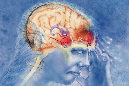 Хроническая мигрень: в поисках первопричины