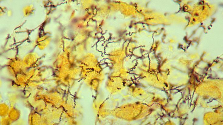 Венерические заболевания могут аукнуться болезнью Альцгеймера
