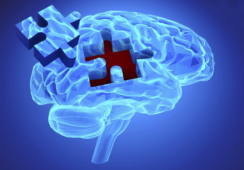 alzheimers disease 8 Alzheimers is the most common form of dementia a progressive disease beginning with mild memory loss possibly leading to loss of the ability to carry on a conversation and respond to the environment.