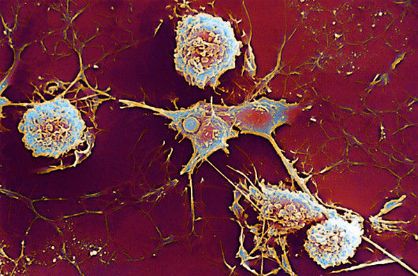 Рассеянный склероз остановили с помощью собственных стволовых клеток