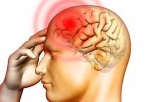 Ученые: частые мигрени наносят вред головному мозгу