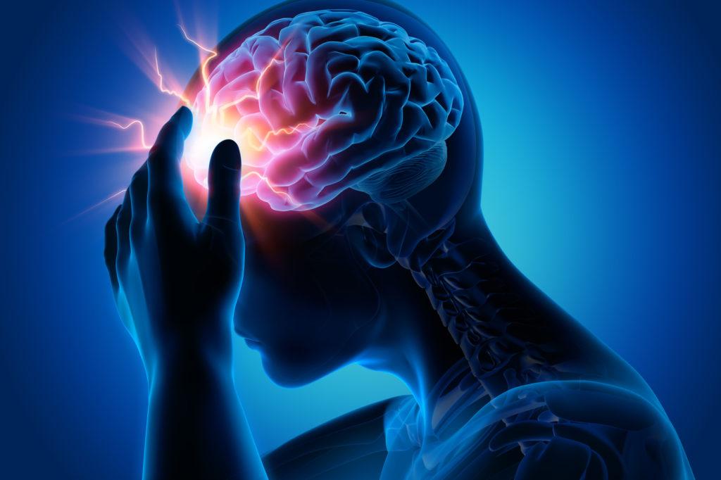 Мигрень сопровождается изменением структуры мозга