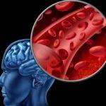 Новый метод следит за кровотоком мозга