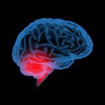 Каждый восьмой человек имеет скрытую патологию мозга