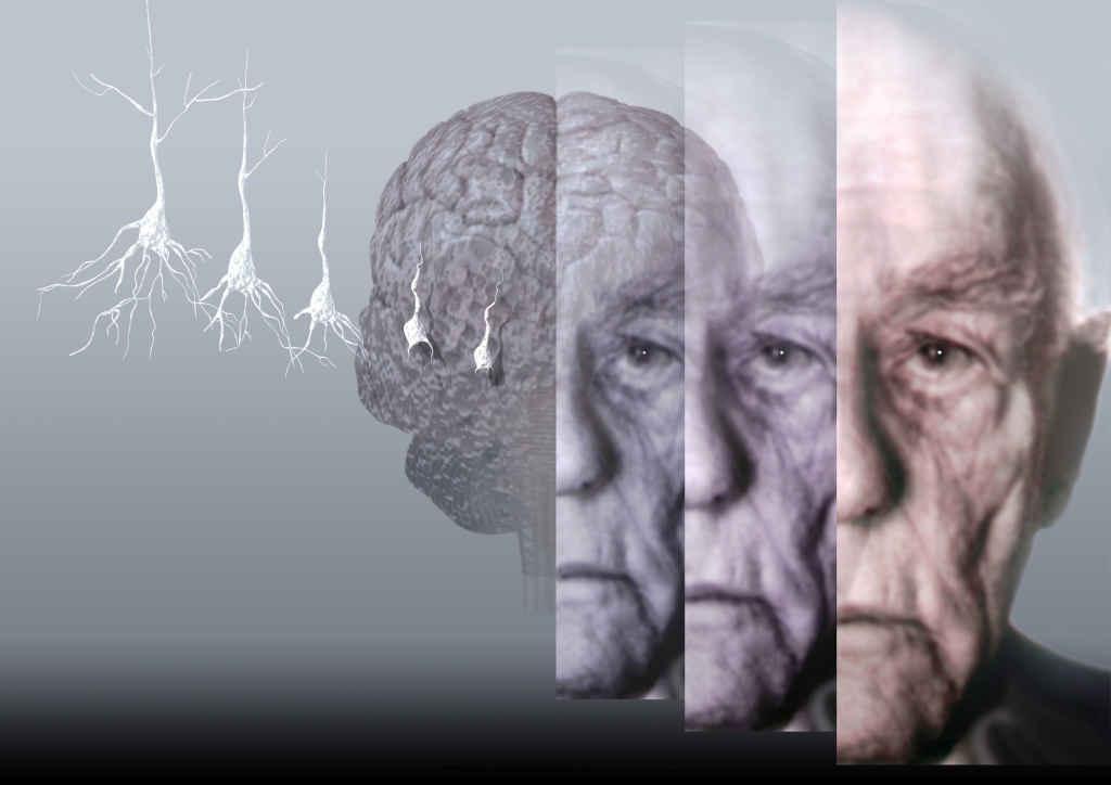 Между стрессом и болезнью Альцгеймера обнаружена связь